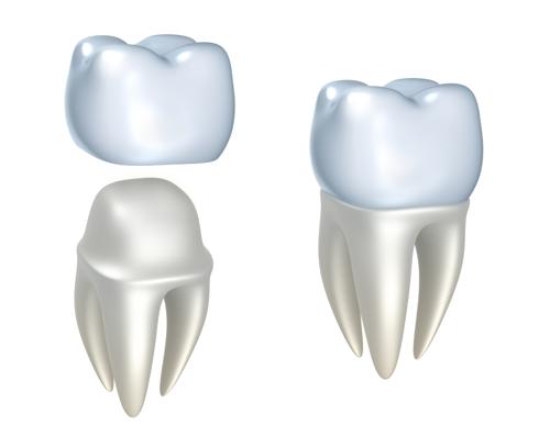 dental crown at Omaha's restorative dentist
