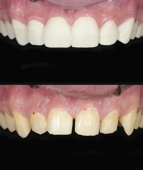 restoratrive-dentistry
