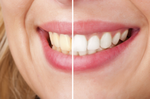Teeth whitening, Before and After Pphot. TJ. Bolmaperti, Omaha cosmetic dentistry